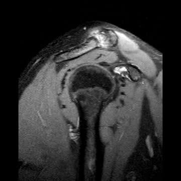 Knochenmarködem Schulter
