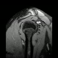 Kernspintomografie Schulter rechts (1)