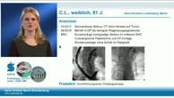 DHC-Stenose bei B-II-Magen - modulare Cholangioskopie