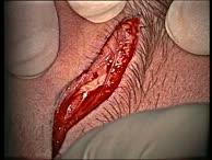 Laterale osteoplatische Orbitotomie für die Behandlung von Orbitatumoren