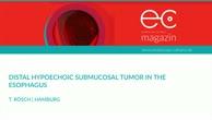 Distal hypoechoic submucosal tumor in the esophagus