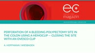 Perforation of a bleeding polypectomy site in the colon