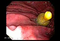 Special Case on Reflux Esophagitis Sequence 2 of 32