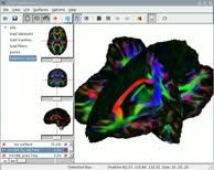 Diffusion MRI Brain Fibre Tractography - White Matter Imaging