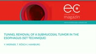 Tunnel removal of a submucosal tumor in the esophagus
