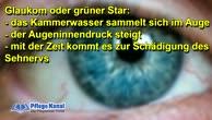 Erkrankungen der Augen - Glaukom oder grüner Star