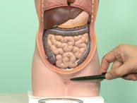 Minimal invasive Chirurgie bei Darmkrebs