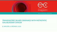 Transgastric biliary drainage with metastatic gallbladder cancer