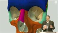 Trailer Folge 6: Live-OP eines Nasennebenhöhlentumors