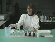 Das manuelle Anfertigen und Färben von Blutausstrichen