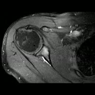 Kernspintomographie Schulter r. - Verdacht auf Arthrose (2)