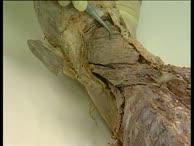 Präparierkurs 1 - Kopf und Hals (7)