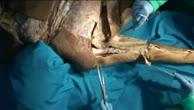 Dorsale Schulter-Dissektion in der Tiefebene (2)