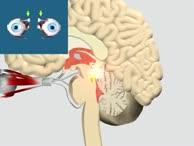 Nervus Trochlearis