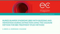 Buried bumper syndrome with bleeding and hemostasis
