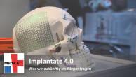Implantate 4.0: Was wir zukünftig im Körper tragen