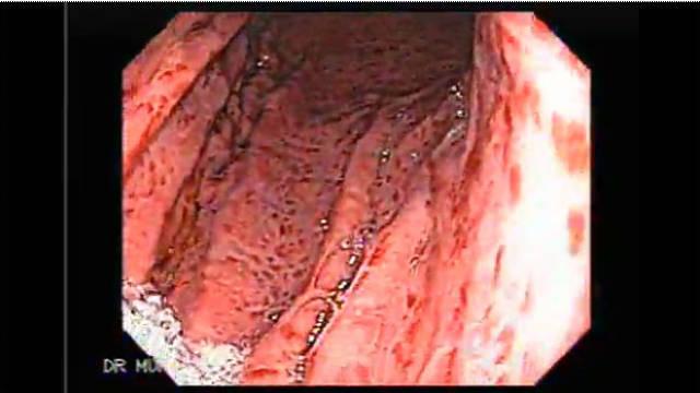 Magenentzündung