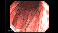 Endoskopie einer akuten Gastritis (Pangastritis) 10 von 10