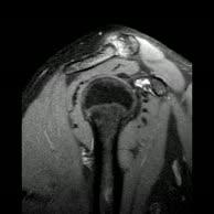 Kernspintomographie Schulter r. (5)