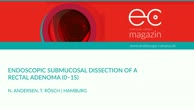 Endoscopic submucosal dissection of a rectal adenoma