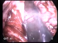 Transanal endoscopic Microsurgery (TEM), Part 10
