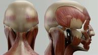Musculus rectus capitis posterior major