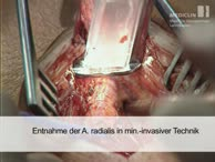 Minimal invasive Entnahme der A. radialis