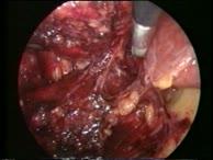 Technik der laparoskopischen Adrenalektomie bei großen Nebennierentumoren