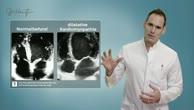 Kardiomyopathie - Was ist das?