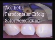 Neue Methode zur Sofortversorgung stark zerstörter Frontzähne, 1992