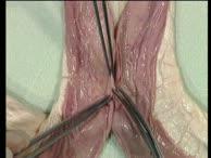 Gastroenterologischer OP-Kurs Handanastomosen 07