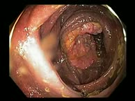 Adenocarcinom, Melanosis Coli