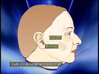 Endoskopisch assistiertes Stirn- und Facelifting