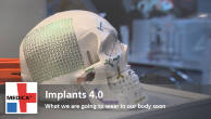 Implants 4.0: What we are going to wear in our body soon