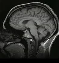 Gehirn im Sagittal-Schnitt