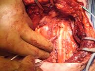 Neuromonitoring des N.recurrens links und des N.Vagus rechts nach Thyreoidektomie und Neck dissection wegen eines follikulären SD-Karzinoms St.T4N1