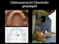 Dentalfotografie Fortbildung Teil 2