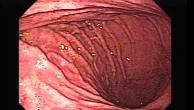Akute Gastritis - Endoskopie (3 von 6)
