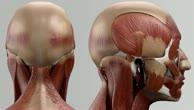 Musculus obliquus capitis superior