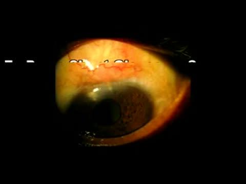 Express GFD-Shunt-Glaucoma Surgery, Dr Parul M Sharma
