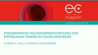 Endoskopische Vollwandresektion eines subepithelialen Tumors im Colon ascendens