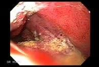 Duodenal Lymphoma 1 of 24