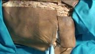 Dorsale Schulter-Dissektion in der Tiefebene (1)