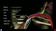 Obere Extremität - Plexus brachialis - Überblick (1/4)