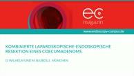 Kombinierte laparoskopische endoskopische Resektion eines Coecumadenoms