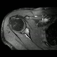 Kernspintomographie Schulter r. - (4)