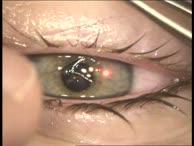 Lasik Augenlaser OP (2)