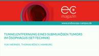Tunnelentfernung eines submukösen Tumors im Ösophagus