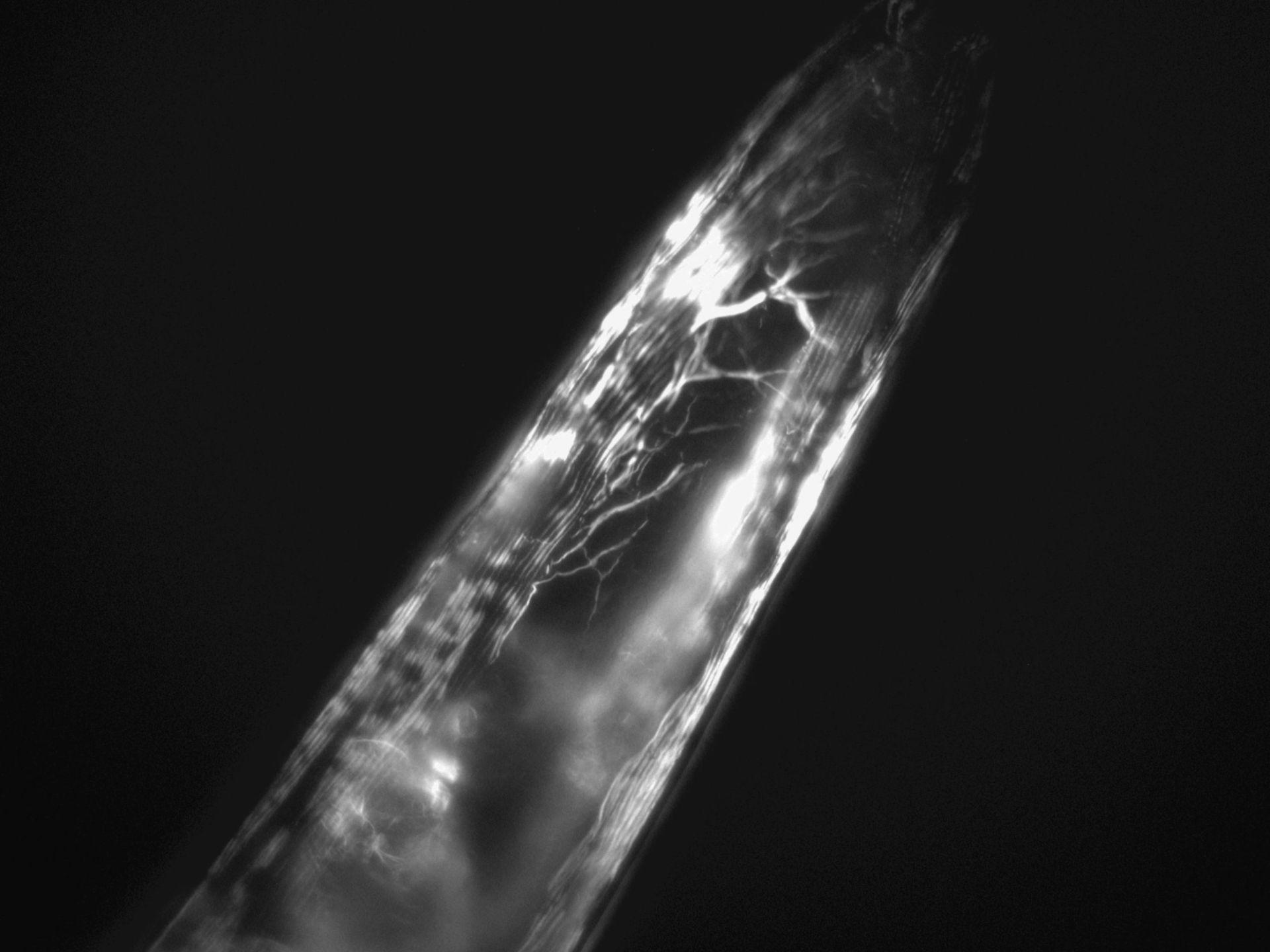 Caenorhabditis elegans (Actin filament) - CIL:1278