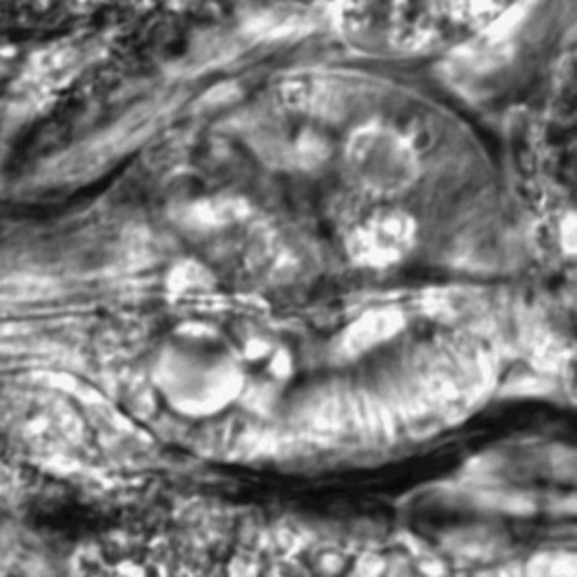 Caenorhabditis elegans - CIL:2716